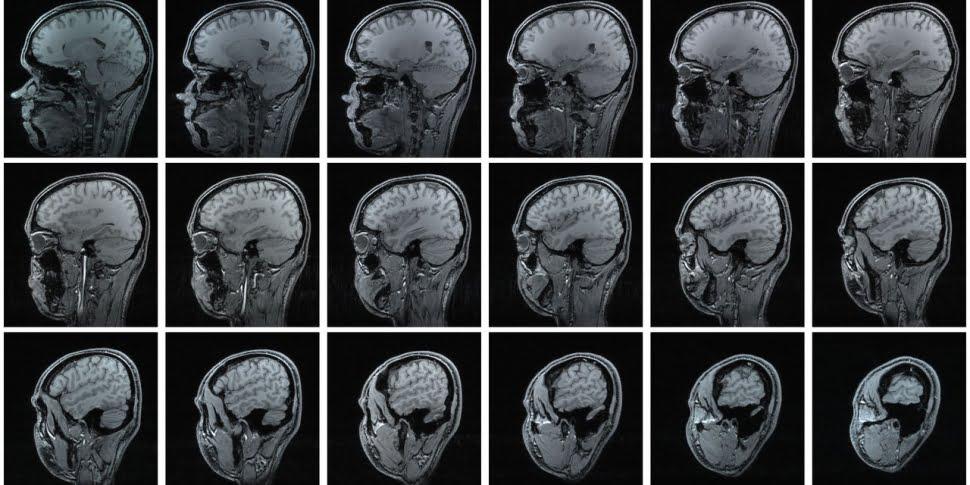 Em busca de respostas mais viscerais, literalmente, essa técnica usa ressonância magnética, eletroencefalografia, codificação facial e rastreamento ocular para entender as escolhas de consumo.
